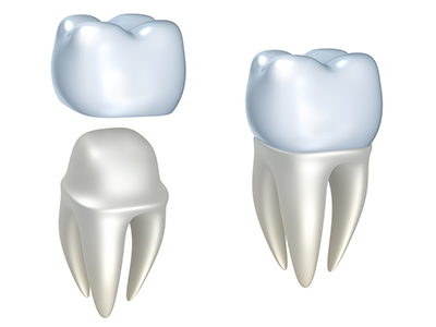 Ways of Protecting Your Dental Crowns from Wear and Tear