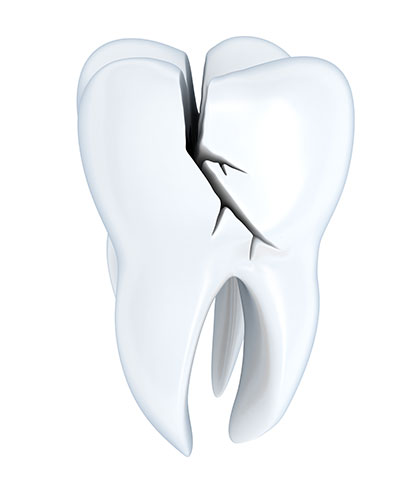 What Exactly Is Cracked Tooth Syndrome?