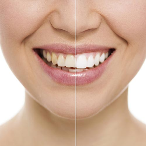 Difference of before and after Teeth Whitening at Jon C. Packman DDS